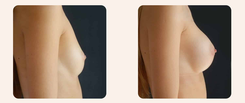 lipofilling-mammaire-avant-apres